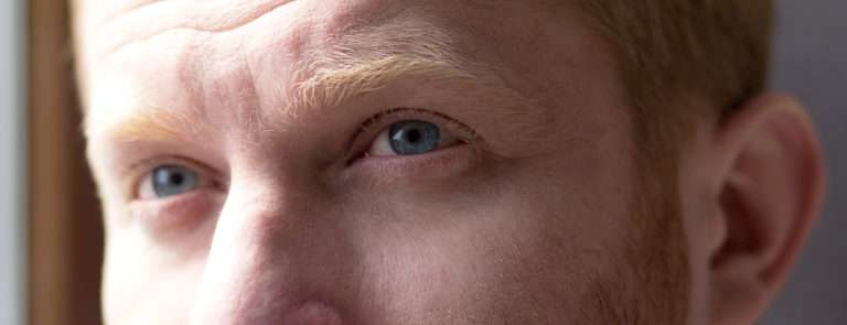 man with healthy eyes